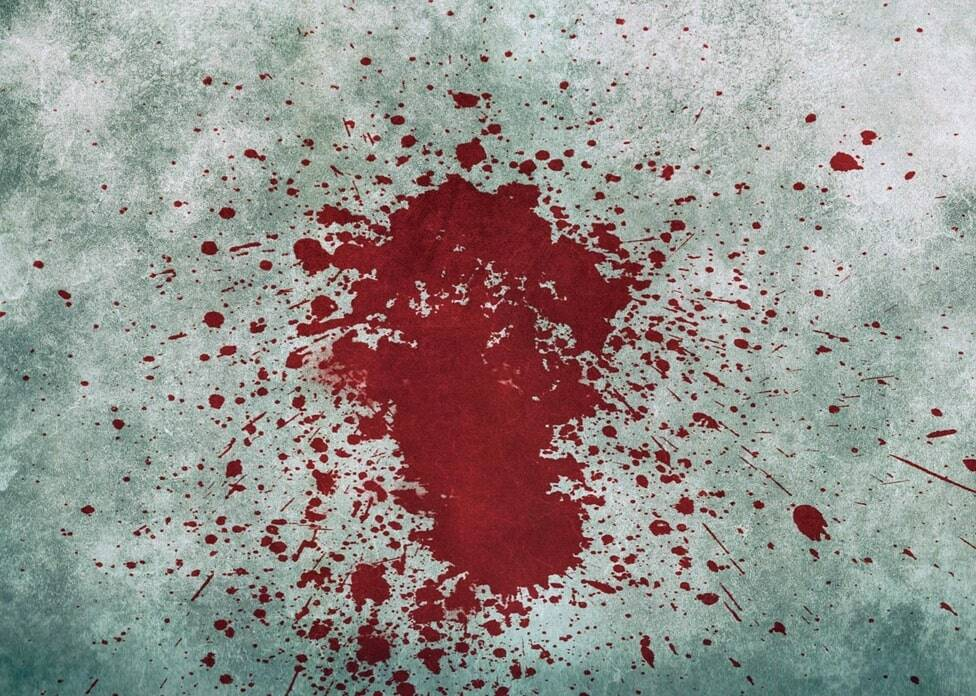 how-to-remove-bloodstains-from-carpet 01